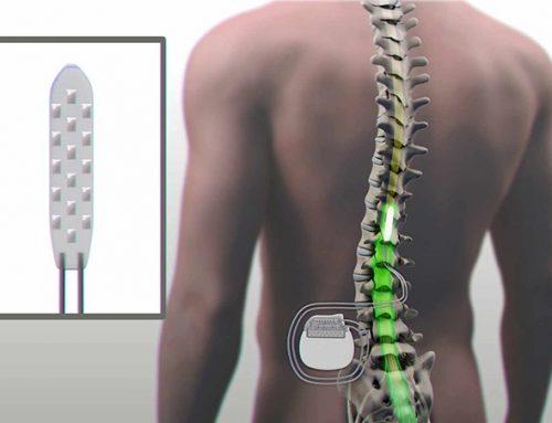 Estimulação da medula espinhal oferece importante alternativa para o tratamento da dor crônica